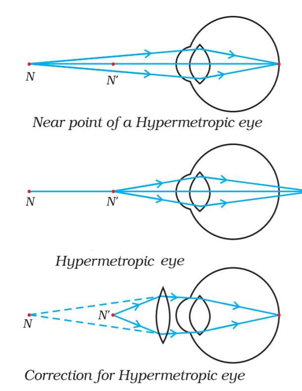correction for hypermetropia